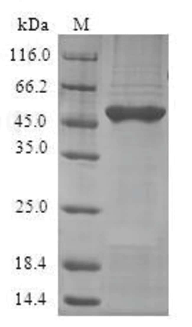 enQuireBio™Recombinant Human GLO1 / Glyoxalase 1 Protein 1mg enQuireBio™Recombinant Human GLO1 / Glyoxalase 1 Protein
