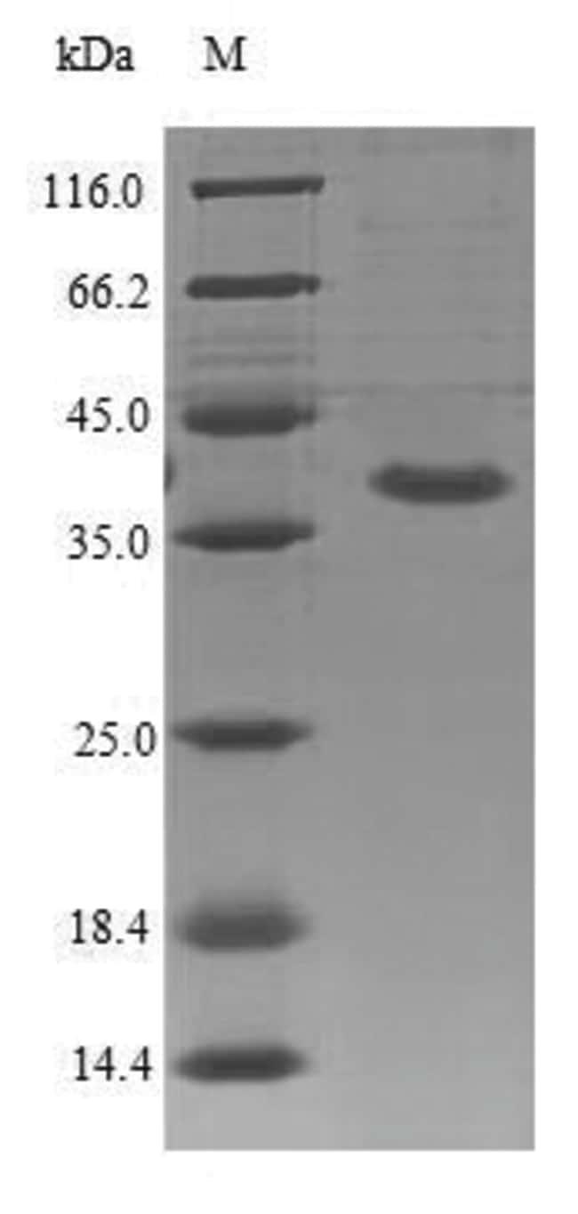 enQuireBio™Recombinant Mouse IL1RL2 / IL-1Rrp2 Protein 10μg enQuireBio™Recombinant Mouse IL1RL2 / IL-1Rrp2 Protein