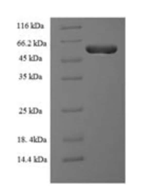 enQuireBio™ Recombinant Human Protein RMD5 homolog A Protein 10μg enQuireBio™ Recombinant Human Protein RMD5 homolog A Protein