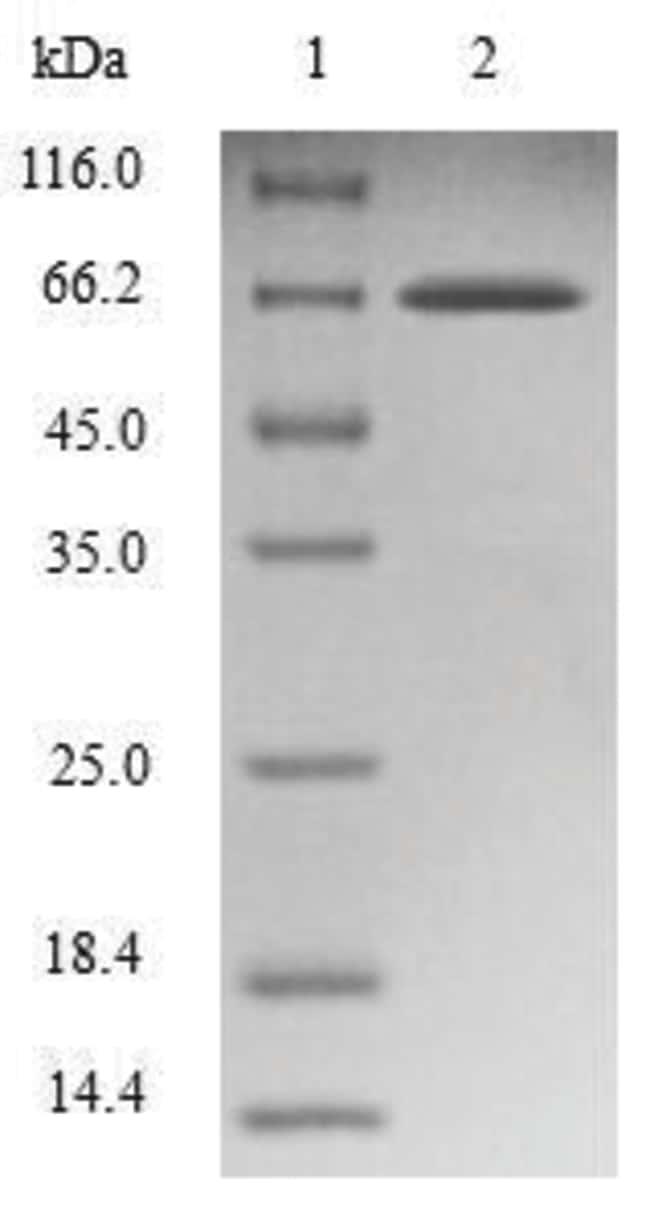 enQuireBio™Recombinant Human Endophilin-B1 Protein 1mg enQuireBio™Recombinant Human Endophilin-B1 Protein