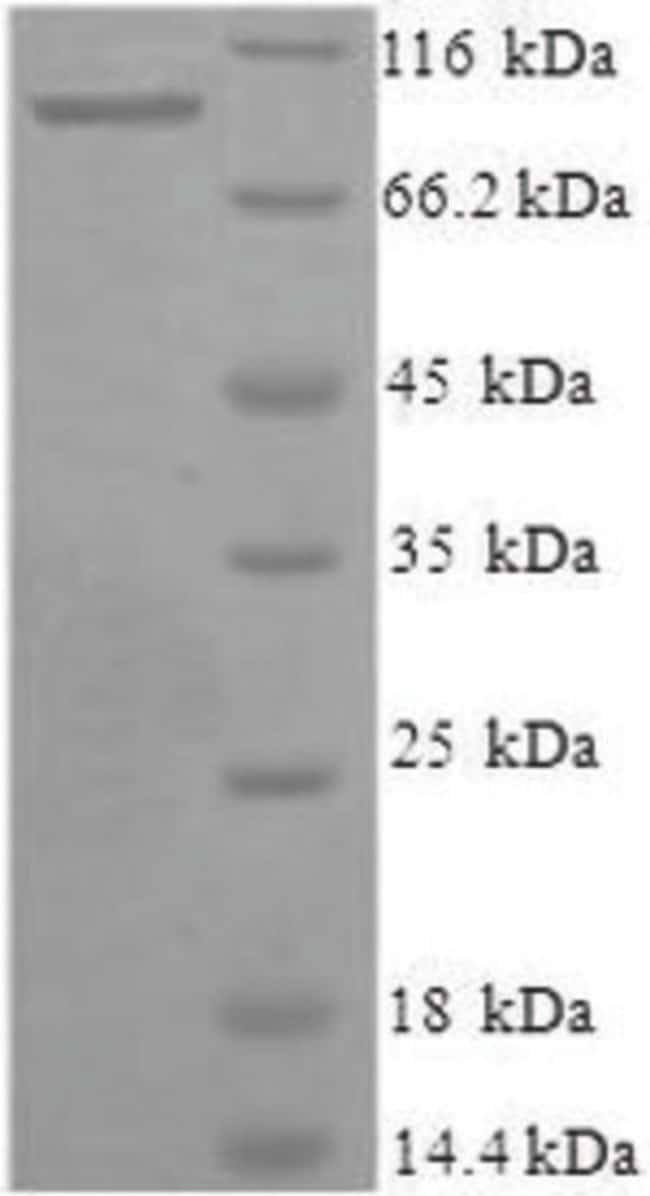 enQuireBio™Recombinant Human Xaa-Pro aminopeptidase 1 Protein 200μg enQuireBio™Recombinant Human Xaa-Pro aminopeptidase 1 Protein