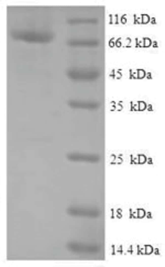 enQuireBio™Recombinant Human Protein FAM114A2 Protein 10μg enQuireBio™Recombinant Human Protein FAM114A2 Protein