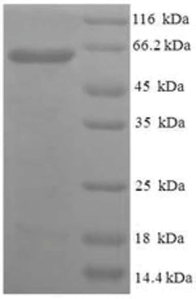 enQuireBio™Recombinant Human PISD Protein 200μg enQuireBio™Recombinant Human PISD Protein