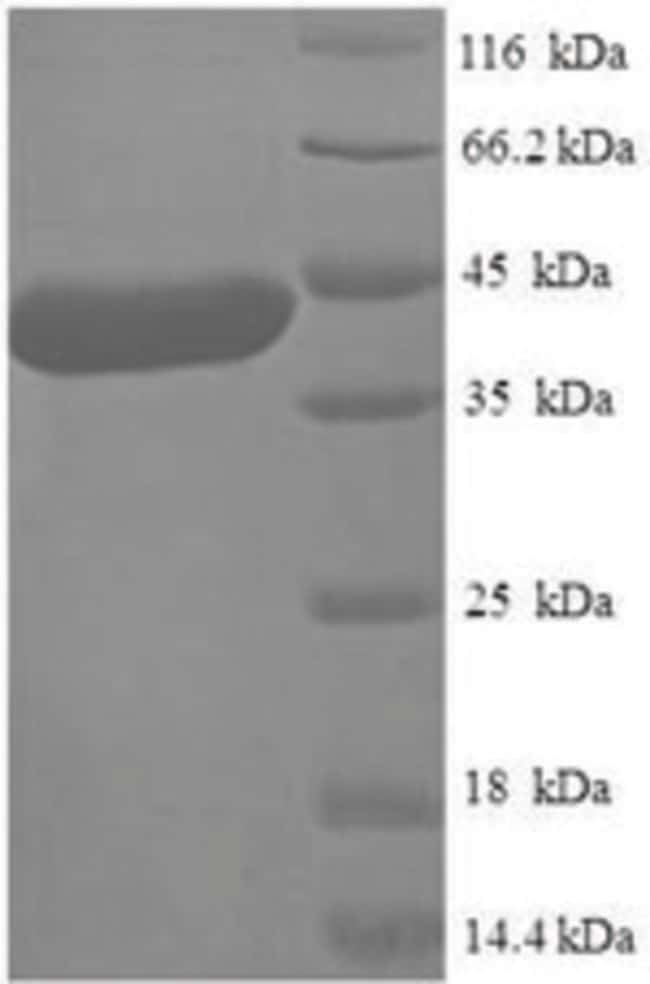 enQuireBio™ Recombinant Human METTL11A Protein: Proteins A-Z Proteins