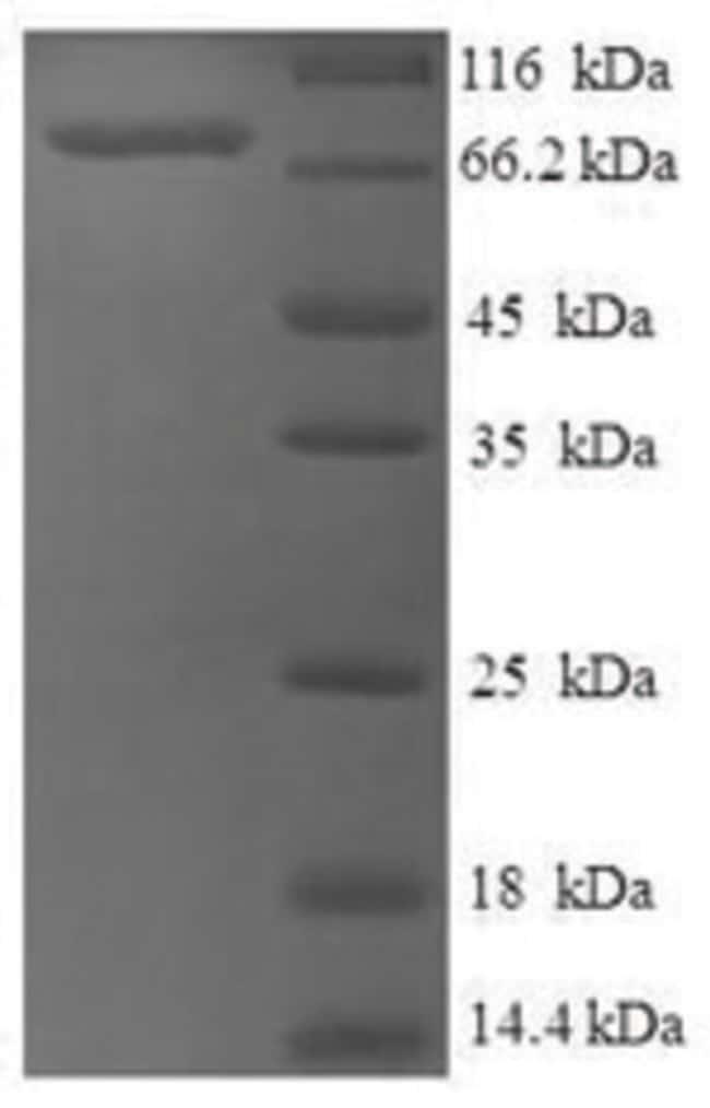 enQuireBio™Recombinant Human ASH2L Protein 50μg enQuireBio™Recombinant Human ASH2L Protein