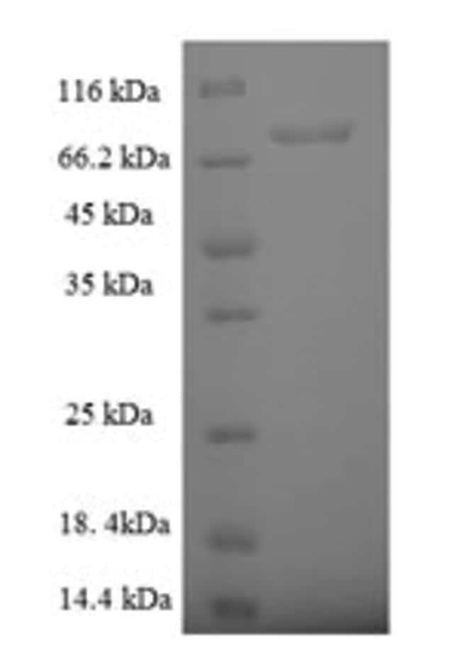 enQuireBio™Recombinant Human Rab5 GDP / GTP exchange factor Protein 200μg enQuireBio™Recombinant Human Rab5 GDP / GTP exchange factor Protein