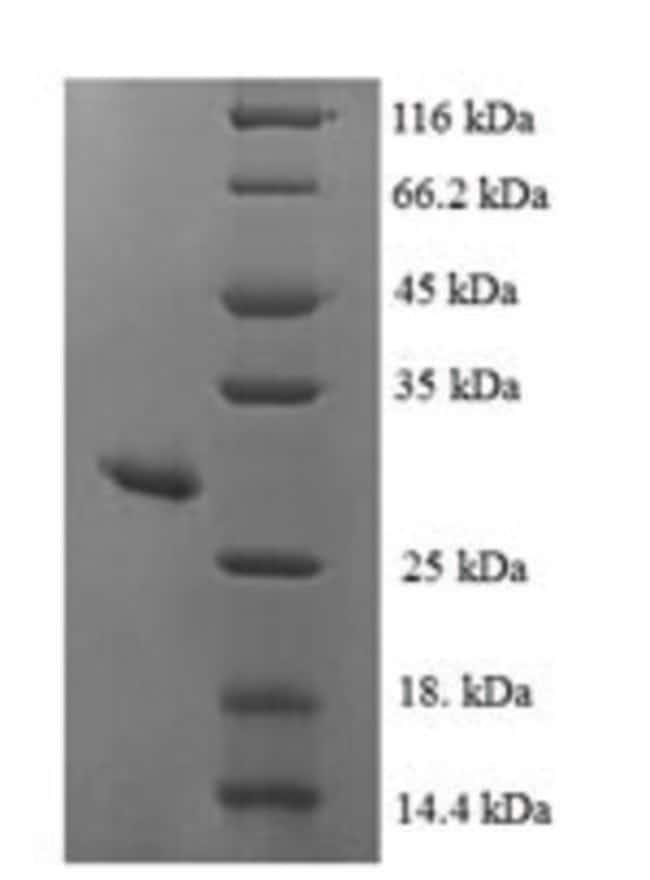 enQuireBio™Recombinant Human MSRA Protein 200μg enQuireBio™Recombinant Human MSRA Protein
