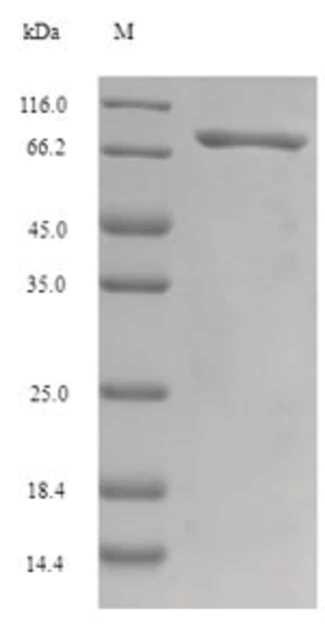 enQuireBio™Recombinant Human Gasdermin-C Protein 100μg enQuireBio™Recombinant Human Gasdermin-C Protein