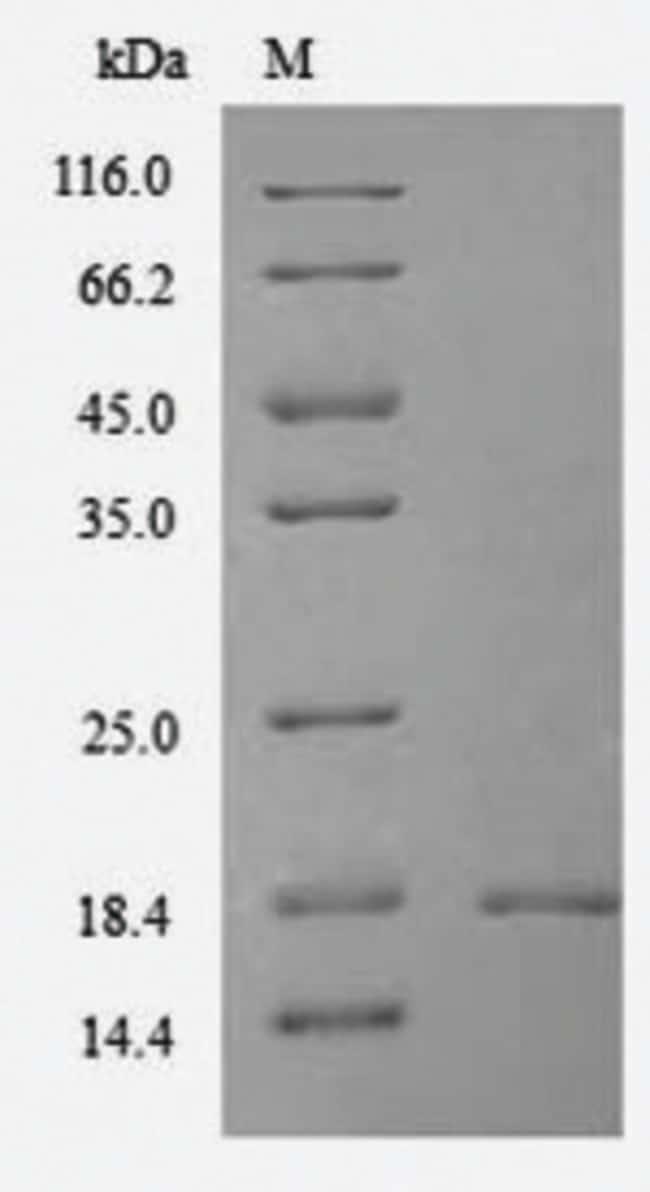 enQuireBio™Recombinant Mouse Thioredoxin domain-containing protein 12 Protein 1mg enQuireBio™Recombinant Mouse Thioredoxin domain-containing protein 12 Protein
