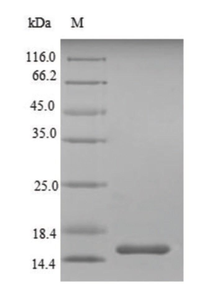 enQuireBio™Recombinant Mouse SIGIRR / TIR8 Protein 100μg enQuireBio™Recombinant Mouse SIGIRR / TIR8 Protein