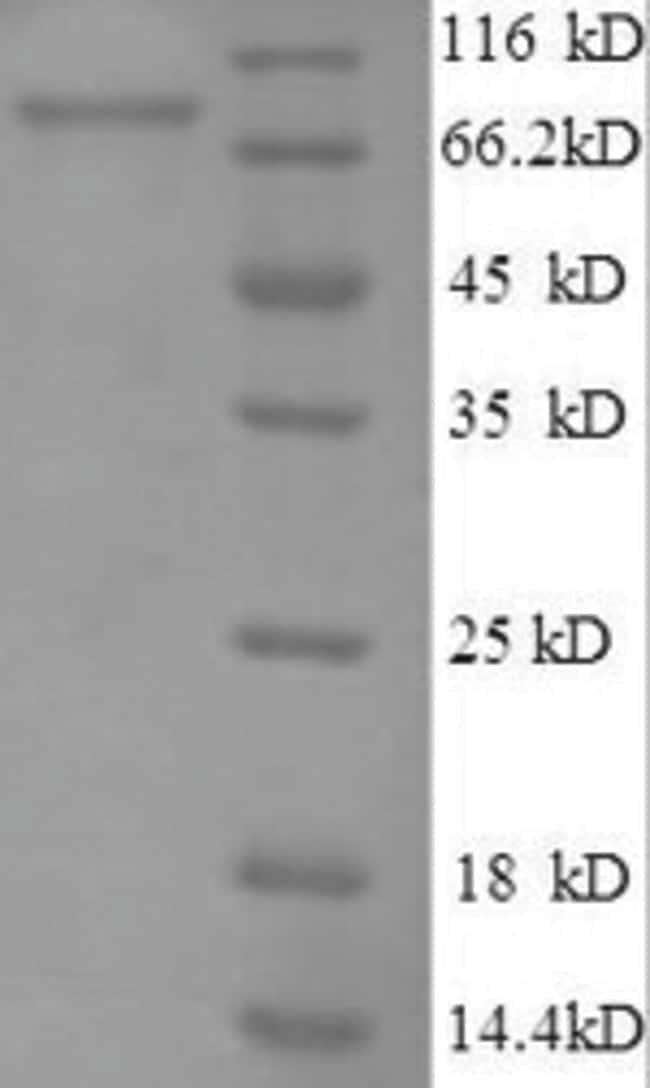 enQuireBio™Recombinant Human E3 ubiquitin-protein ligase RAD18 Protein 100μg enQuireBio™Recombinant Human E3 ubiquitin-protein ligase RAD18 Protein
