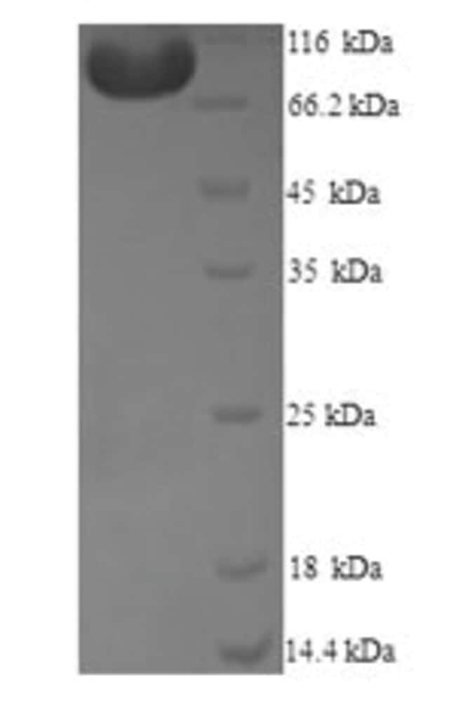 enQuireBio™Recombinant Human Methionine synthase reductase Protein 500μg enQuireBio™Recombinant Human Methionine synthase reductase Protein