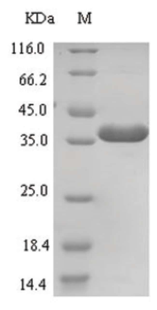 enQuireBio™Recombinant Human E3 ubiquitin-protein ligase ZNRF3 Protein 1mg enQuireBio™Recombinant Human E3 ubiquitin-protein ligase ZNRF3 Protein