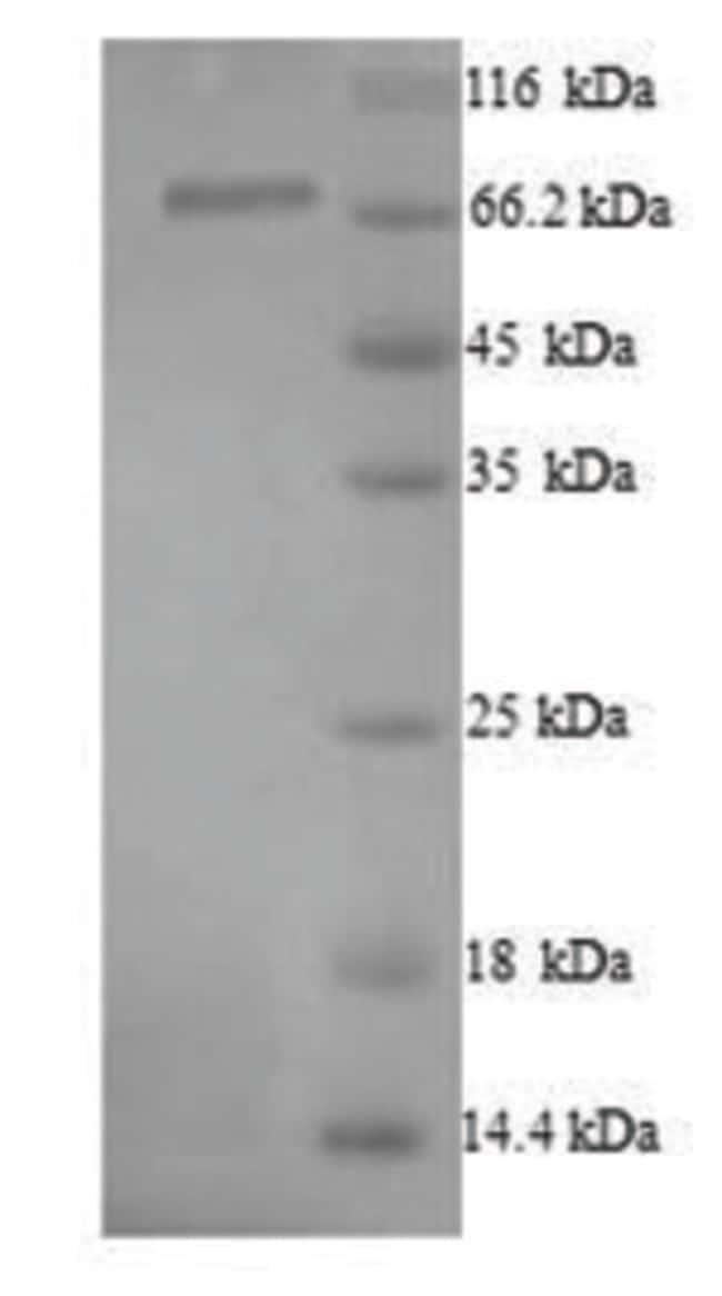 enQuireBio™Recombinant Human Protein-arginine deiminase type-1 Protein 500μg enQuireBio™Recombinant Human Protein-arginine deiminase type-1 Protein