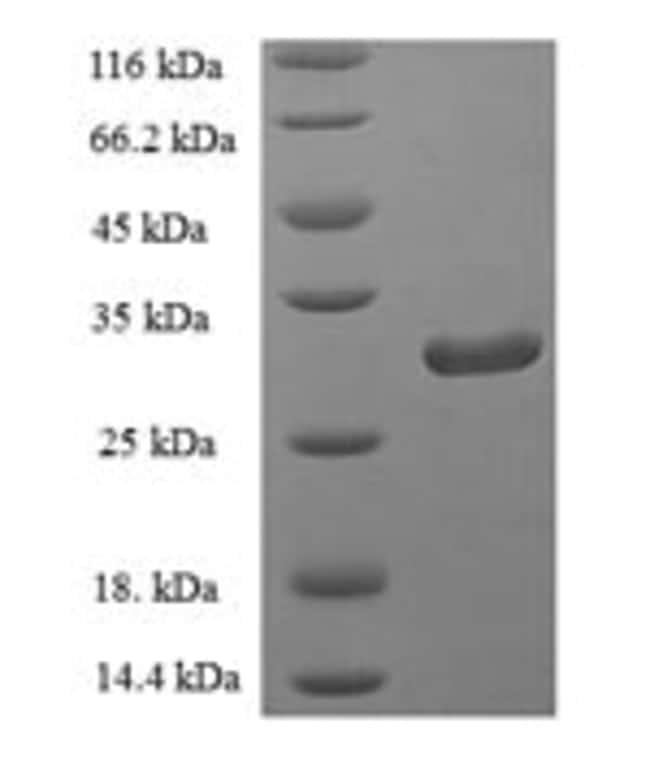 enQuireBio™Recombinant Human PLA2G2D / Phospholipase A2 IID Protein 10μg enQuireBio™Recombinant Human PLA2G2D / Phospholipase A2 IID Protein