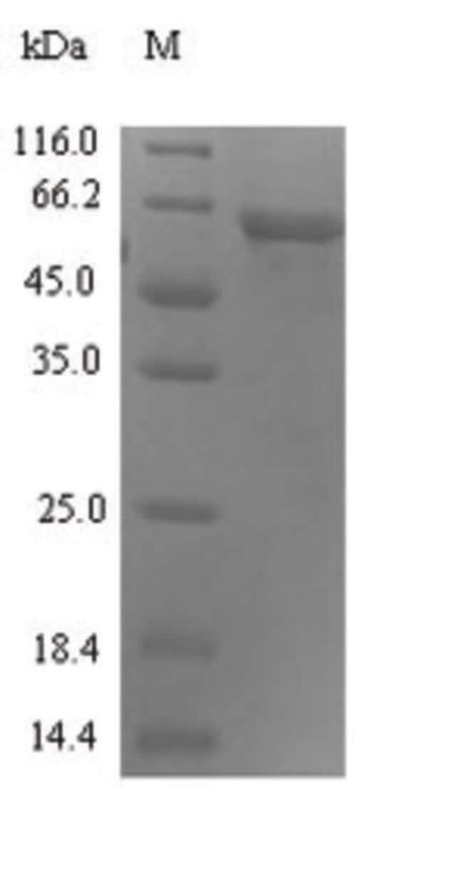 enQuireBio™Recombinant Human Syncytin-1 Protein 100μg enQuireBio™Recombinant Human Syncytin-1 Protein