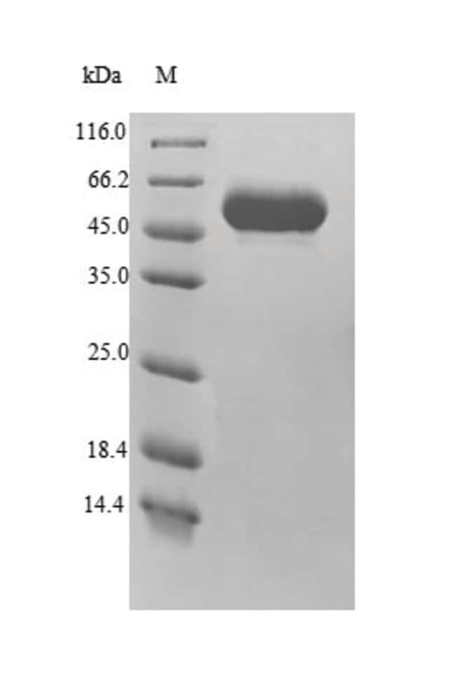 enQuireBio™Recombinant Human Minpp1 Protein 1mg enQuireBio™Recombinant Human Minpp1 Protein