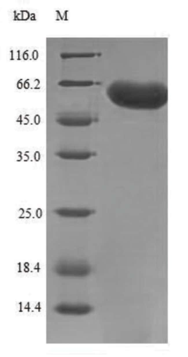 enQuireBio™Recombinant Human F-box / LRR-repeat protein 1 500μg enQuireBio™Recombinant Human F-box / LRR-repeat protein 1