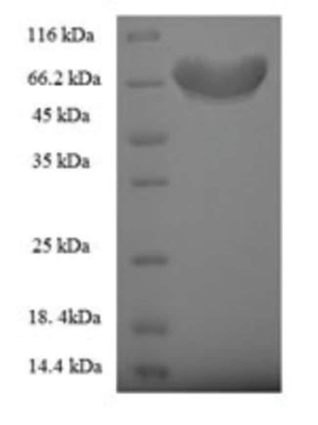 enQuireBio™Recombinant Human Fizzy-related protein homolog Protein 200μg enQuireBio™Recombinant Human Fizzy-related protein homolog Protein