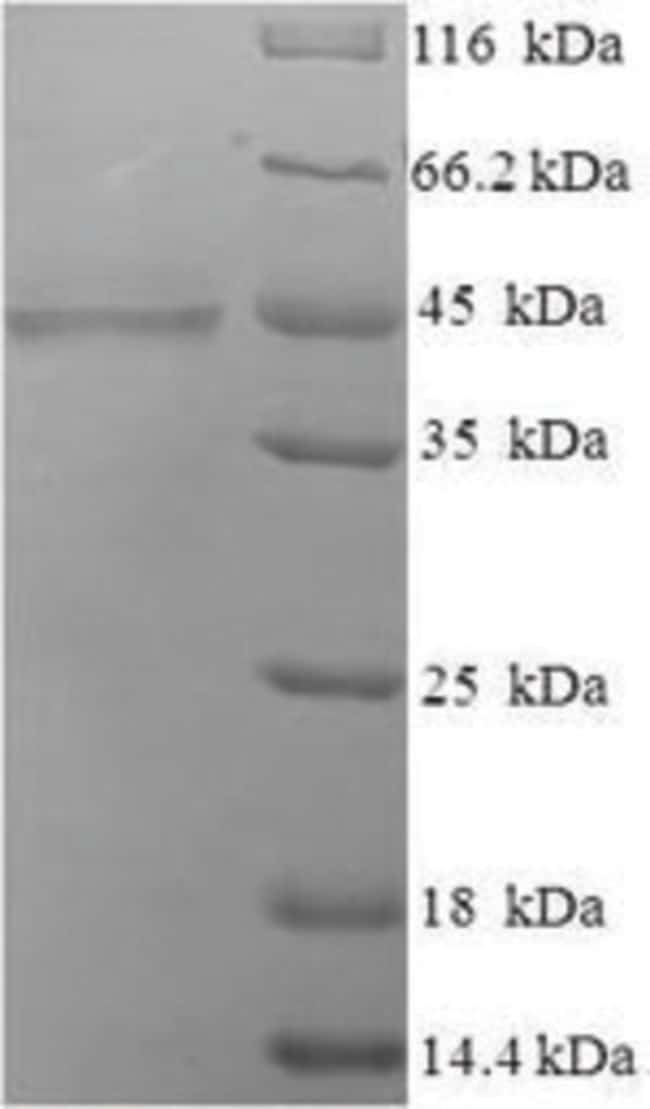 enQuireBio™ Recombinant Human COLEC10 Protein: Proteins A-Z Proteins