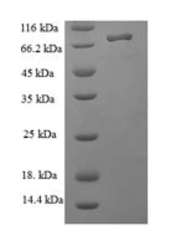 enQuireBio™Recombinant Human Nucleolar protein 58 Protein 500μg enQuireBio™Recombinant Human Nucleolar protein 58 Protein