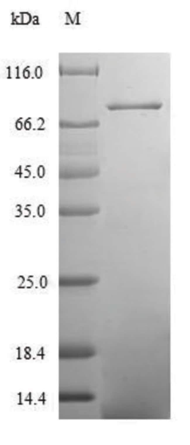 enQuireBio™Recombinant Human Centrosomal protein of 83 kDa Protein 10μg enQuireBio™Recombinant Human Centrosomal protein of 83 kDa Protein