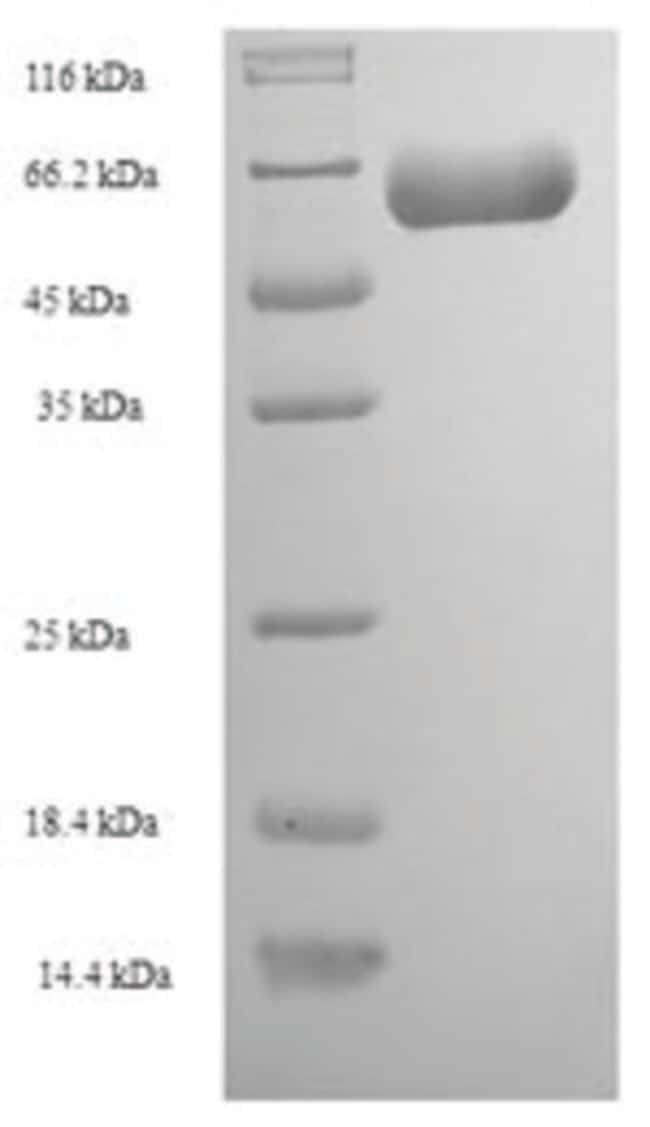 enQuireBio™ Recombinant Human Actin-like protein 7A Protein 500μg enQuireBio™ Recombinant Human Actin-like protein 7A Protein
