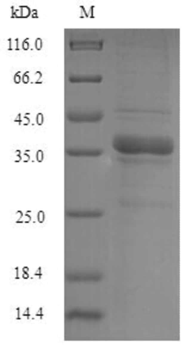 enQuireBio™Recombinant Human NIP7 homolog Protein 50μg enQuireBio™Recombinant Human NIP7 homolog Protein