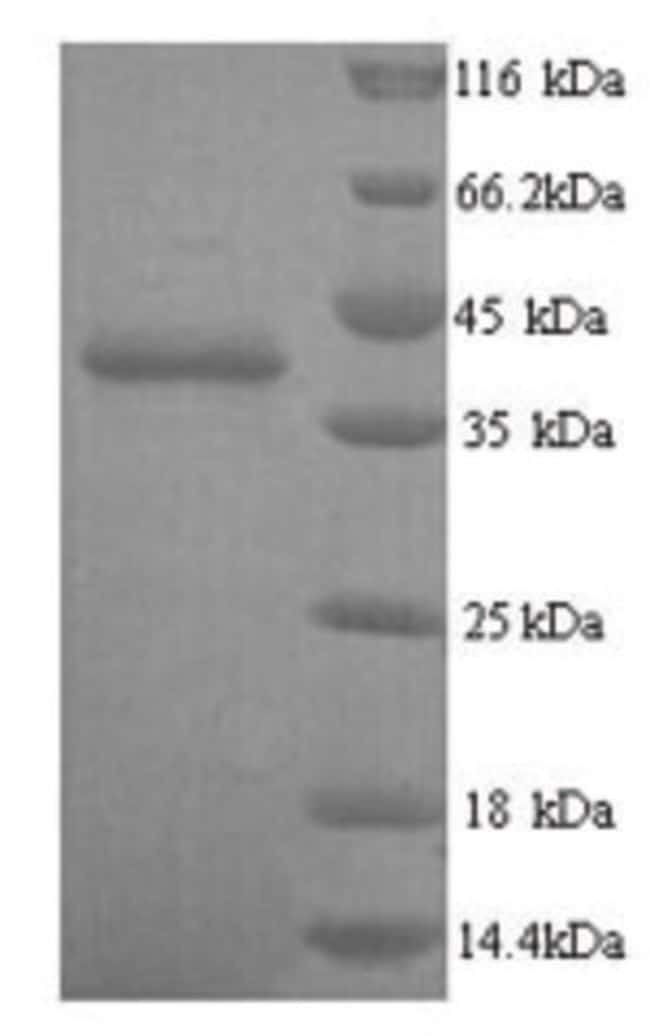 enQuireBio™Recombinant Human Talin-2 Protein 1mg enQuireBio™Recombinant Human Talin-2 Protein