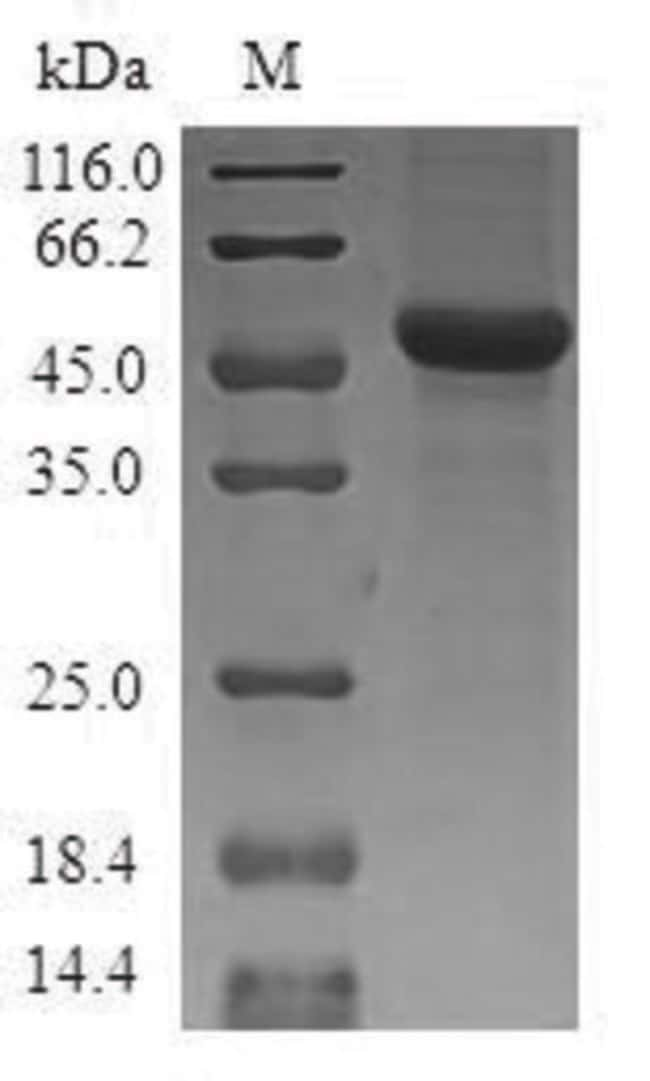 enQuireBio™Recombinant Human Mitochondrial ornithine transporter 1 Protein 10μg enQuireBio™Recombinant Human Mitochondrial ornithine transporter 1 Protein
