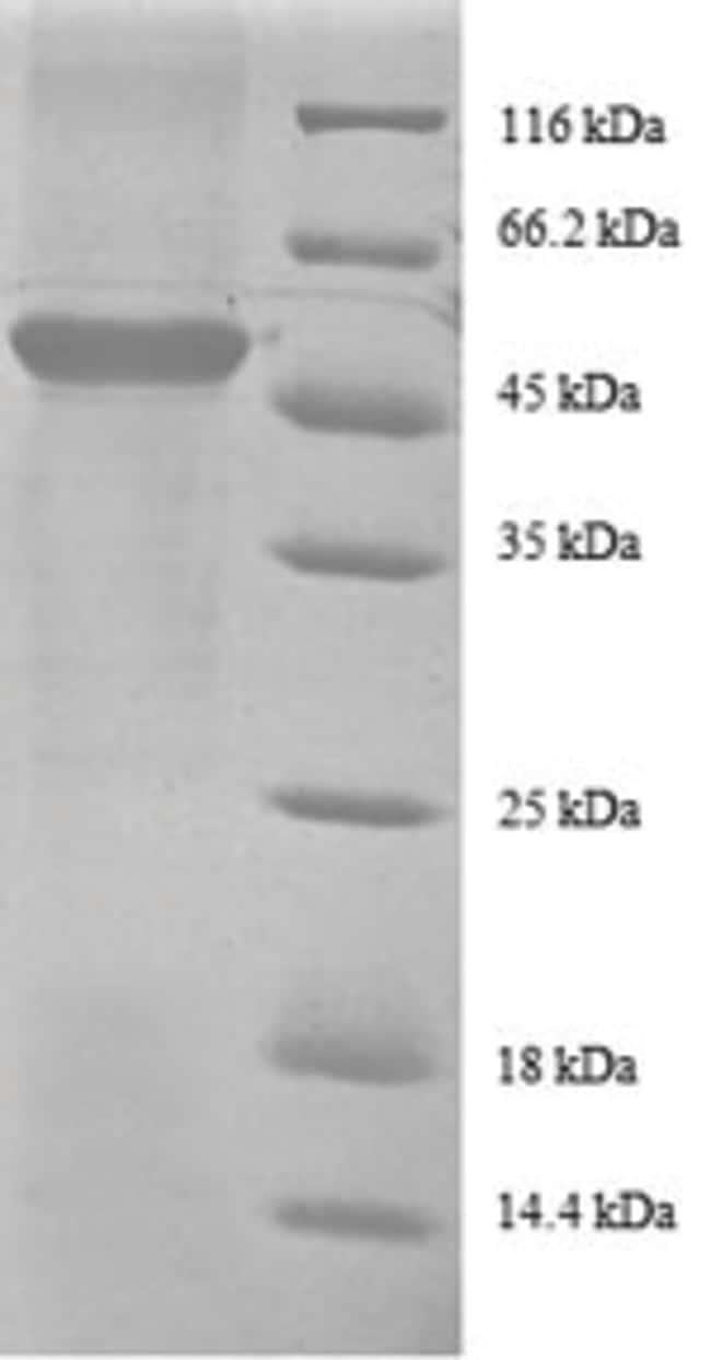 enQuireBio™Recombinant Human 40S ribosomal protein S9 Protein 100μg enQuireBio™Recombinant Human 40S ribosomal protein S9 Protein