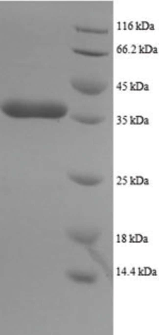enQuireBio™ Recombinant Human Dynein light chain 1, cytoplasmic Protein 10μg enQuireBio™ Recombinant Human Dynein light chain 1, cytoplasmic Protein