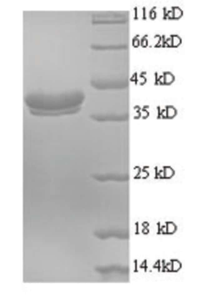 enQuireBio™Recombinant Human Ubiquitin-like protein FUBI Protein 1mg enQuireBio™Recombinant Human Ubiquitin-like protein FUBI Protein