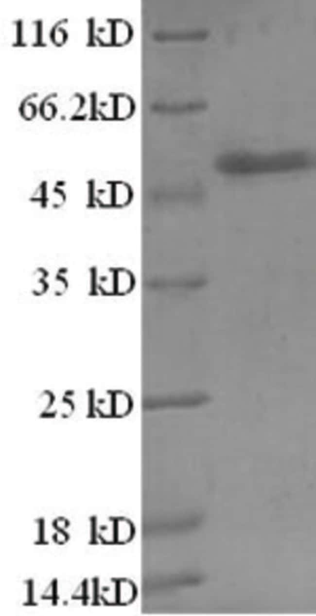 enQuireBio™ Recombinant Human Zinc finger BED domain-containing protein 1 100μg enQuireBio™ Recombinant Human Zinc finger BED domain-containing protein 1