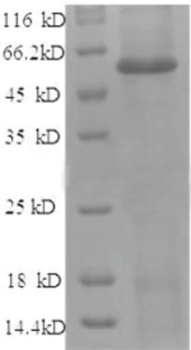 enQuireBio™Recombinant Human Angiopoietin-2 / ANG2 Protein 500μg enQuireBio™Recombinant Human Angiopoietin-2 / ANG2 Protein
