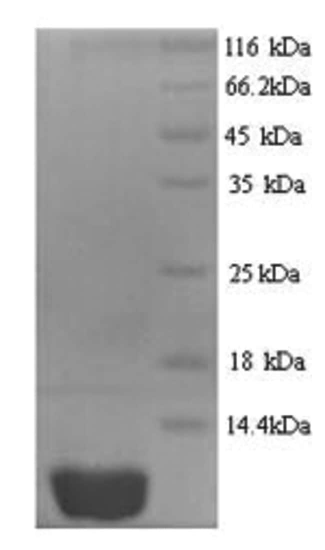 enQuireBio™Recombinant Human IP-10 / CXCL10 Protein 500μg enQuireBio™Recombinant Human IP-10 / CXCL10 Protein