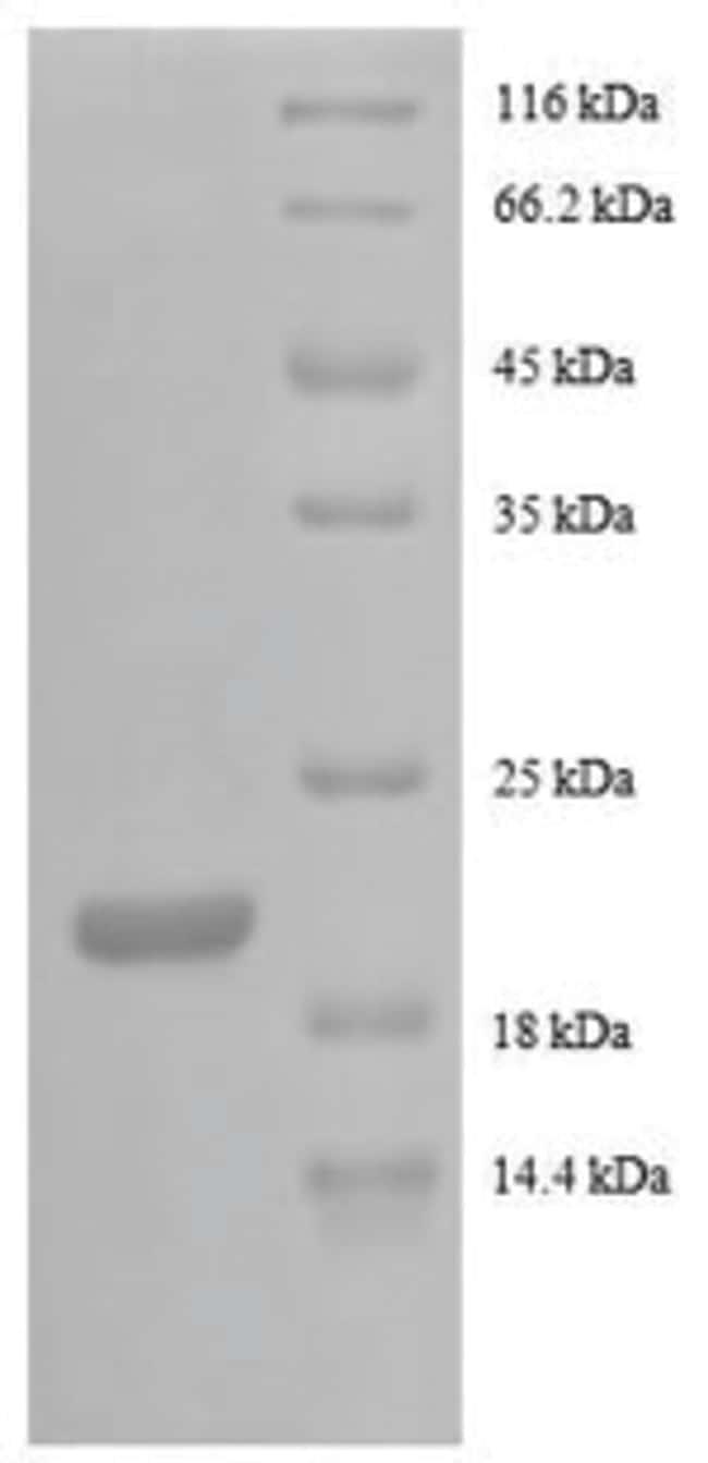 enQuireBio™Recombinant Human G-CSF / CSF3 Protein 500μg enQuireBio™Recombinant Human G-CSF / CSF3 Protein