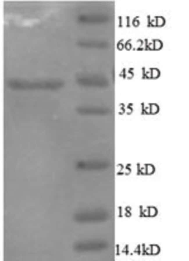 enQuireBio™ Recombinant Human IL10 / Interleukin-10 Protein 200μg enQuireBio™ Recombinant Human IL10 / Interleukin-10 Protein
