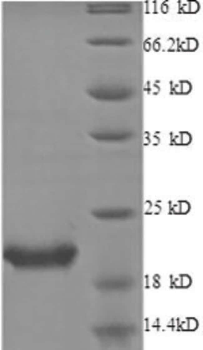 enQuireBio™Recombinant Human IL-1RA / IL1RN Protein 50μg enQuireBio™Recombinant Human IL-1RA / IL1RN Protein