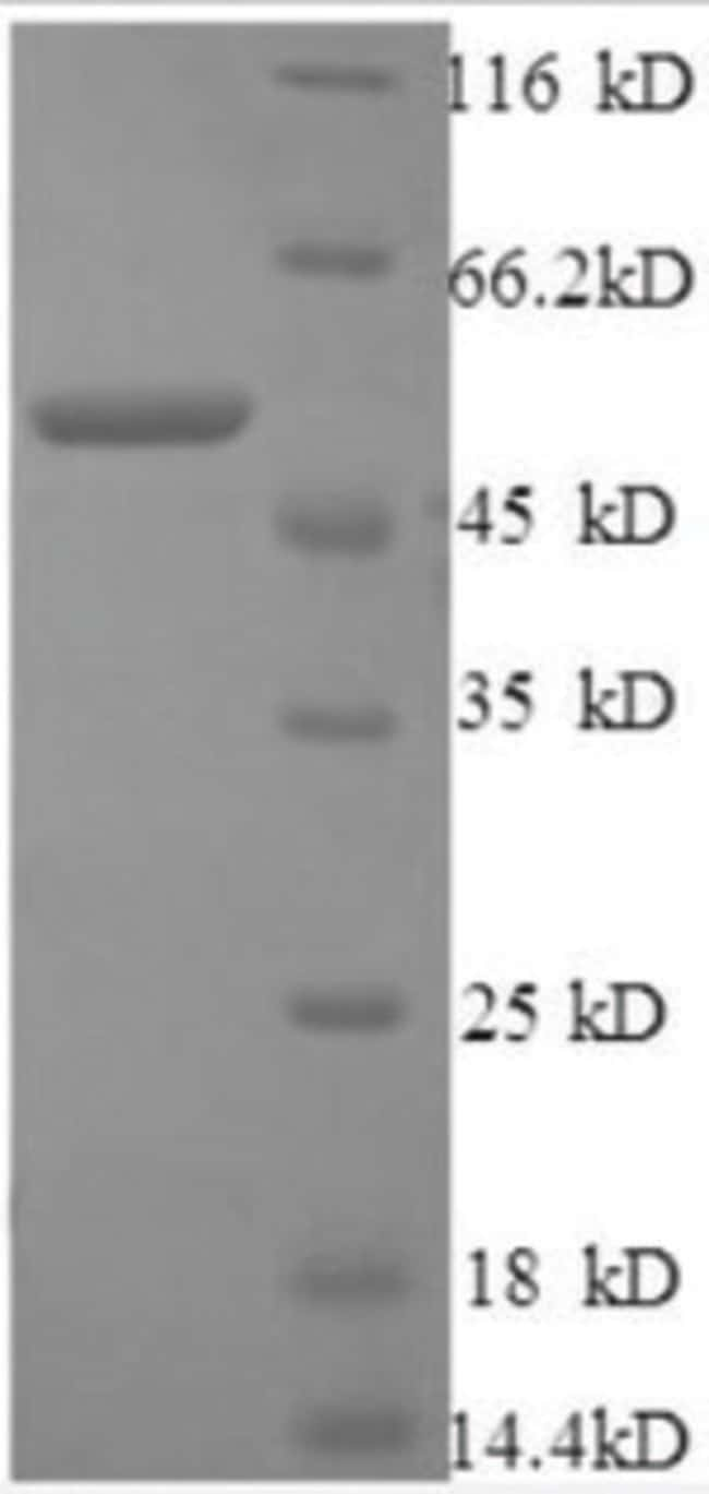 enQuireBio™ Recombinant Human Cathepsin B / CTSB Protein: Proteins A-Z Proteins