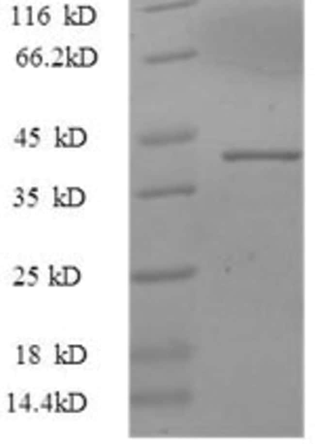 enQuireBio™Recombinant Human SNCA / alpha-Synuclein Protein 500μg enQuireBio™Recombinant Human SNCA / alpha-Synuclein Protein