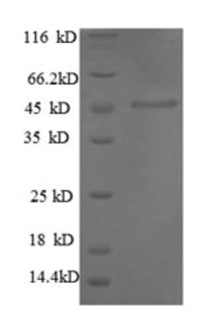 enQuireBio™Recombinant Human MMP1 Protein 1mg enQuireBio™Recombinant Human MMP1 Protein