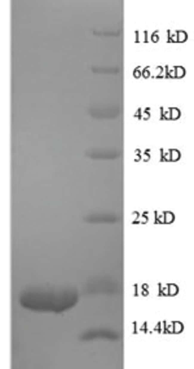enQuireBio™Recombinant Human TGF-beta 1 / TGFB1 Protein: Proteins A-Z Proteins