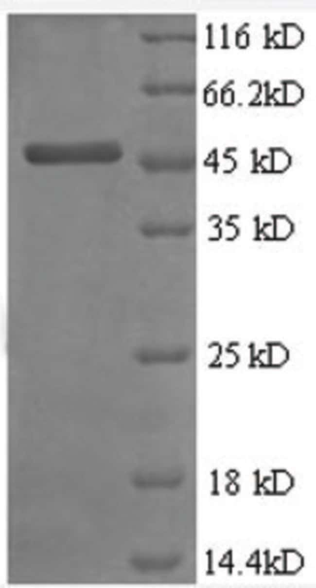 enQuireBio™Recombinant Human TIMP2 / TIMP-2 Protein: Proteins A-Z Proteins