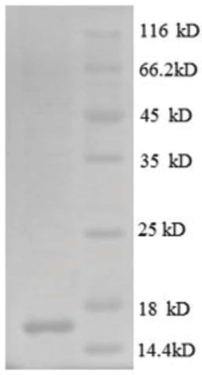enQuireBio™Recombinant Human CD171 / N-CAML1 / L1CAM Protein 200μg enQuireBio™Recombinant Human CD171 / N-CAML1 / L1CAM Protein