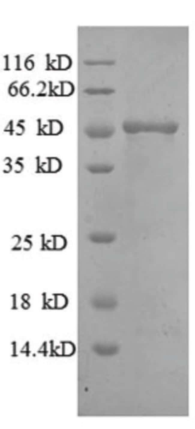enQuireBio™ Recombinant Human MMP7 Protein 50μg enQuireBio™ Recombinant Human MMP7 Protein