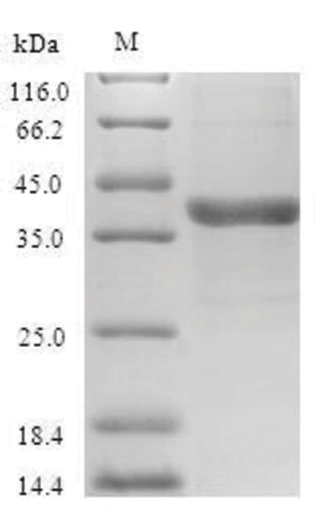 enQuireBio™Recombinant Human VEGF-C Protein 50μg enQuireBio™Recombinant Human VEGF-C Protein