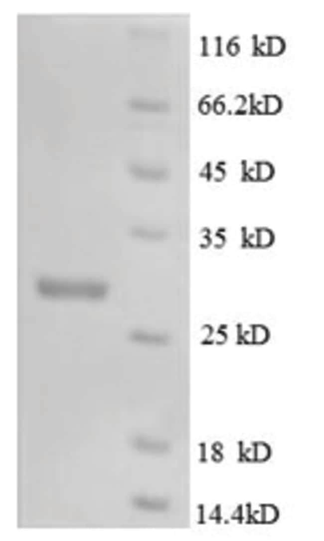 enQuireBio™Recombinant Mouse M-CSF / CSF-1 Protein 10μg enQuireBio™Recombinant Mouse M-CSF / CSF-1 Protein