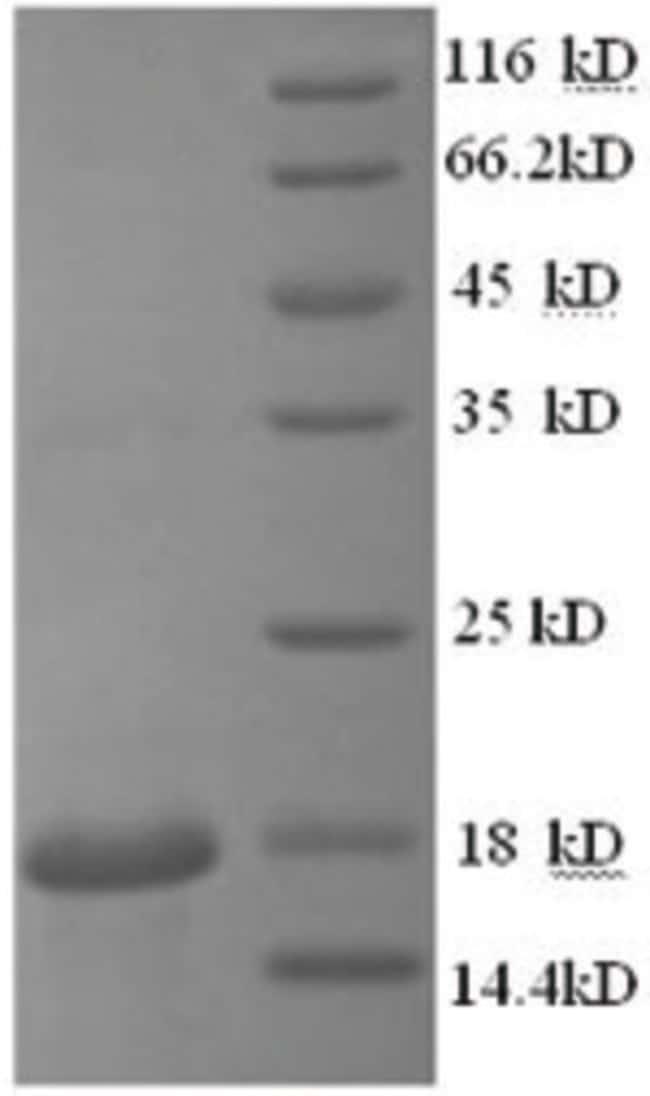 enQuireBio™Recombinant Human Cyclophilin A / PPIA / CYPA Protein 50μg enQuireBio™Recombinant Human Cyclophilin A / PPIA / CYPA Protein