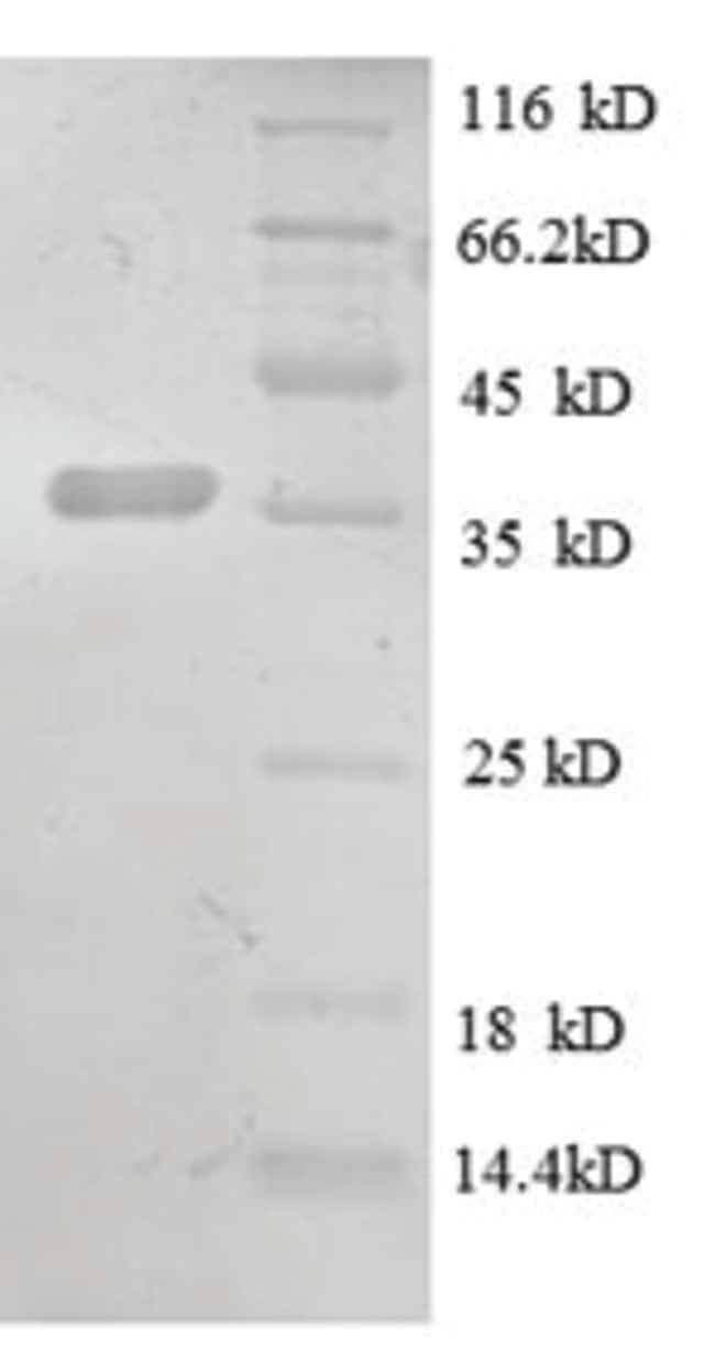 enQuireBio™Recombinant Rat CXCL13 / BCA-1 / BLC Protein 100μg enQuireBio™Recombinant Rat CXCL13 / BCA-1 / BLC Protein